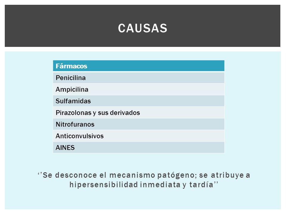 ''Se desconoce el mecanismo patógeno; se atribuye a hipersensibilidad inmediata y tardía'' CAUSAS Fármacos Penicilina Ampicilina Sulfamidas Pirazolona