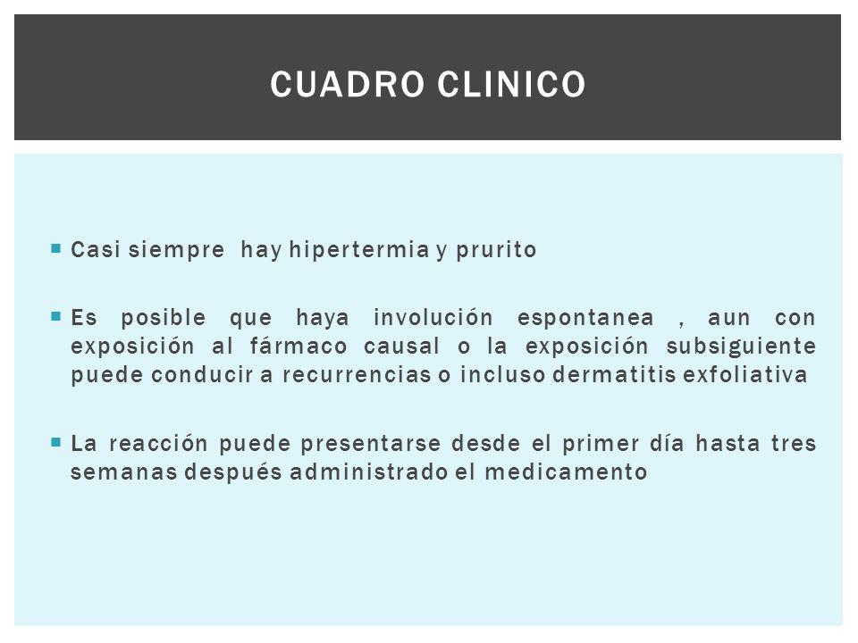  Casi siempre hay hipertermia y prurito  Es posible que haya involución espontanea, aun con exposición al fármaco causal o la exposición subsiguient