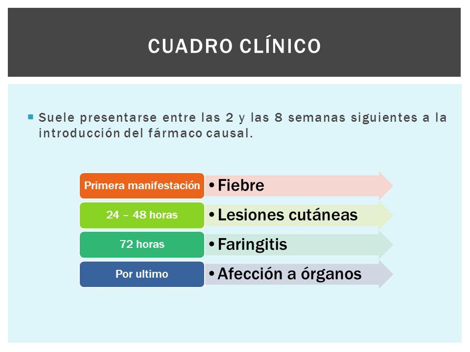  Suele presentarse entre las 2 y las 8 semanas siguientes a la introducción del fármaco causal. CUADRO CLÍNICO Fiebre Primera manifestación Lesiones