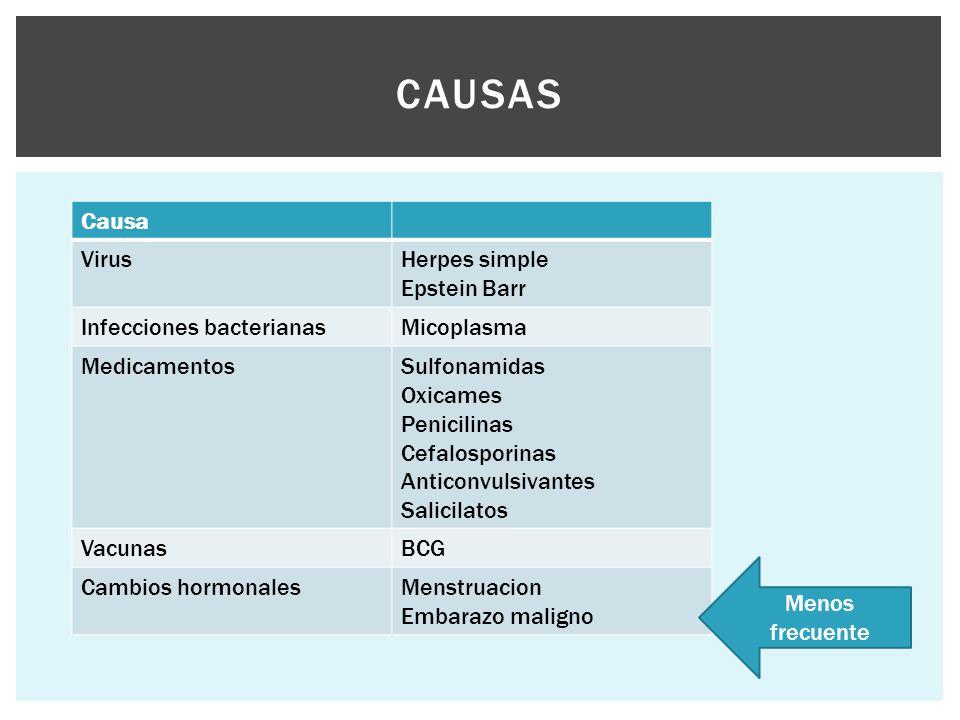 CAUSAS Causa VirusHerpes simple Epstein Barr Infecciones bacterianasMicoplasma MedicamentosSulfonamidas Oxicames Penicilinas Cefalosporinas Anticonvul