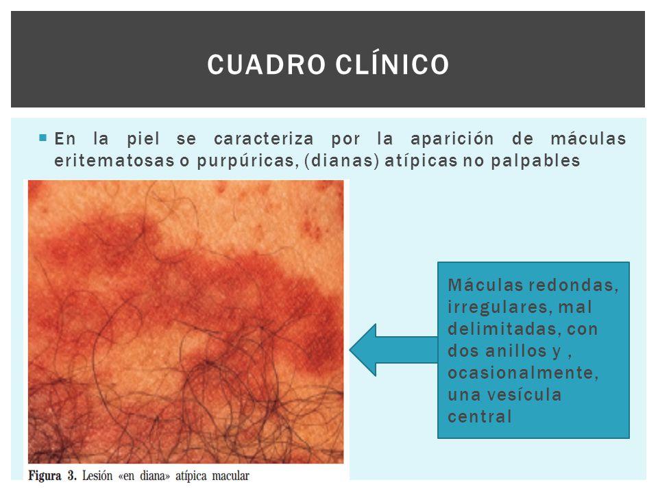  En la piel se caracteriza por la aparición de máculas eritematosas o purpúricas, (dianas) atípicas no palpables CUADRO CLÍNICO Máculas redondas, irr