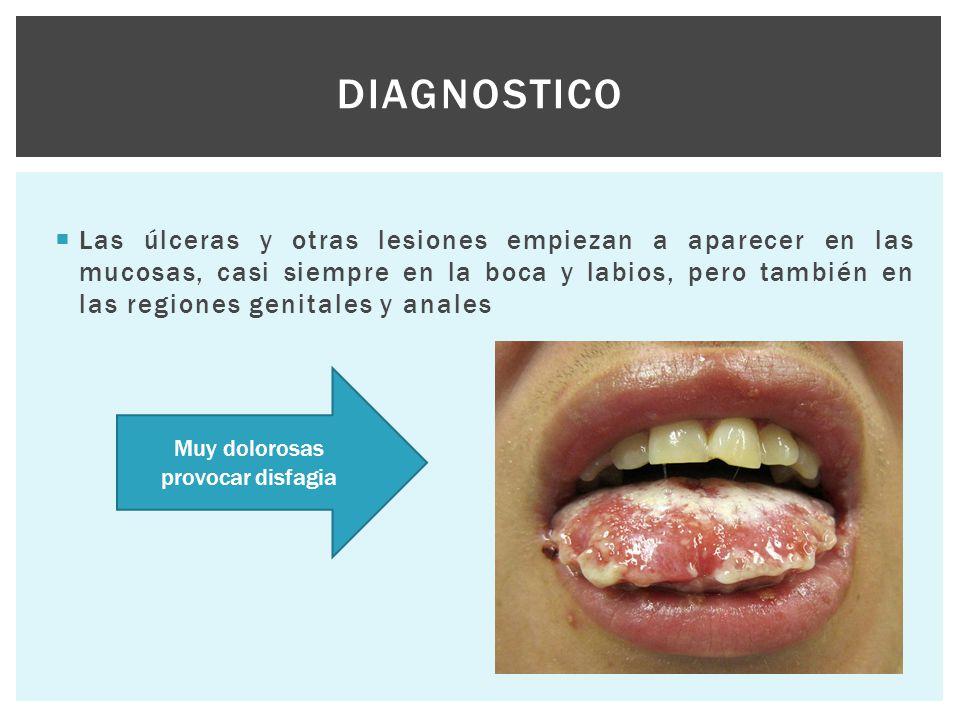  Las úlceras y otras lesiones empiezan a aparecer en las mucosas, casi siempre en la boca y labios, pero también en las regiones genitales y anales D
