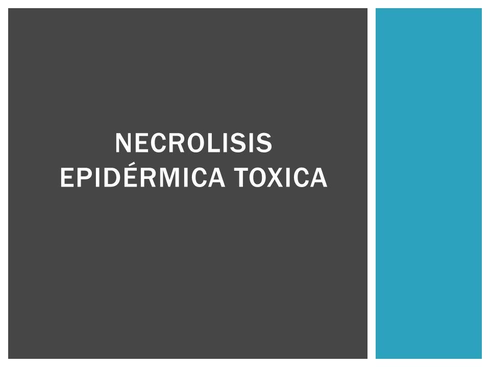 NECROLISIS EPIDÉRMICA TOXICA