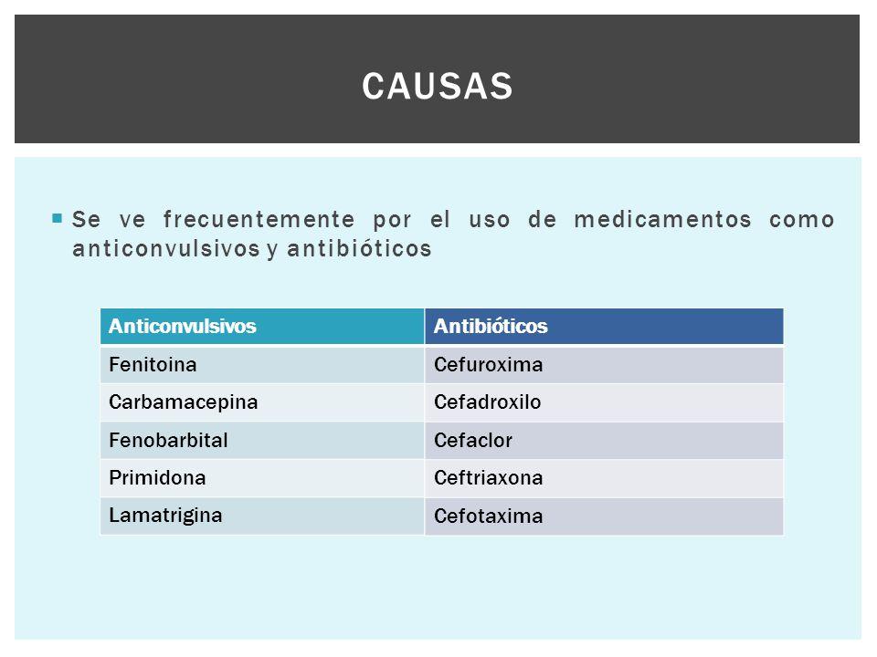 Se ve frecuentemente por el uso de medicamentos como anticonvulsivos y antibióticos CAUSAS Anticonvulsivos Fenitoina Carbamacepina Fenobarbital Prim