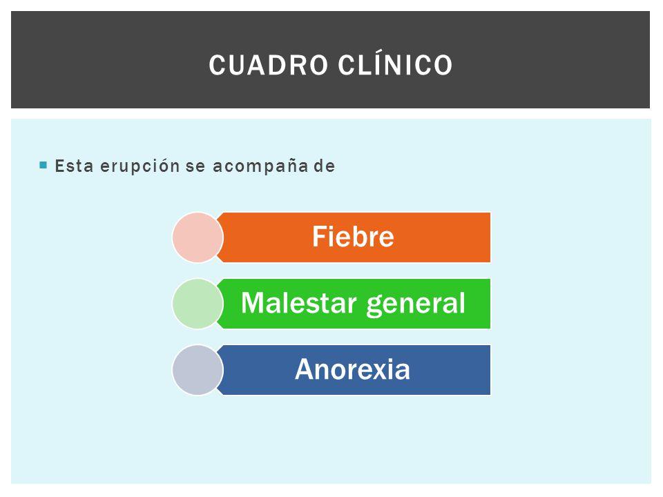 Esta erupción se acompaña de CUADRO CLÍNICO Fiebre Malestar general Anorexia