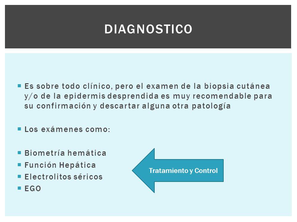  Es sobre todo clínico, pero el examen de la biopsia cutánea y/o de la epidermis desprendida es muy recomendable para su confirmación y descartar alg
