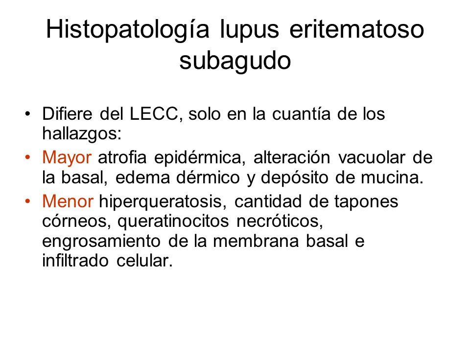 Histopatología lupus eritematoso subagudo Difiere del LECC, solo en la cuantía de los hallazgos: Mayor atrofia epidérmica, alteración vacuolar de la basal, edema dérmico y depósito de mucina.