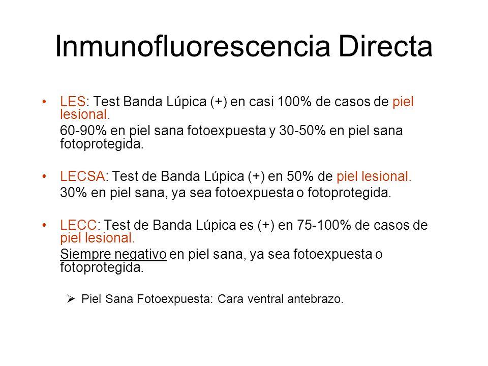 Inmunofluorescencia Directa LES: Test Banda Lúpica (+) en casi 100% de casos de piel lesional. 60-90% en piel sana fotoexpuesta y 30-50% en piel sana
