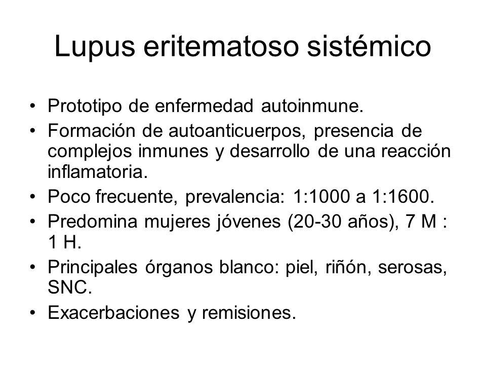 Lupus eritematoso sistémico Prototipo de enfermedad autoinmune. Formación de autoanticuerpos, presencia de complejos inmunes y desarrollo de una reacc