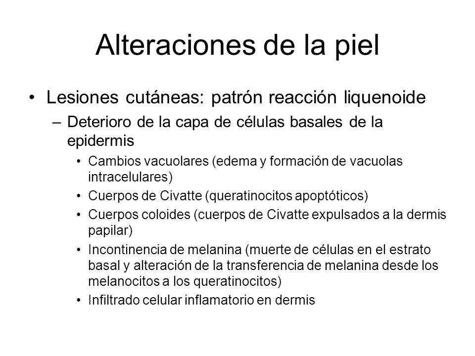 Alteraciones de la piel Lesiones cutáneas: patrón reacción liquenoide –Deterioro de la capa de células basales de la epidermis Cambios vacuolares (edema y formación de vacuolas intracelulares) Cuerpos de Civatte (queratinocitos apoptóticos) Cuerpos coloides (cuerpos de Civatte expulsados a la dermis papilar) Incontinencia de melanina (muerte de células en el estrato basal y alteración de la transferencia de melanina desde los melanocitos a los queratinocitos) Infiltrado celular inflamatorio en dermis