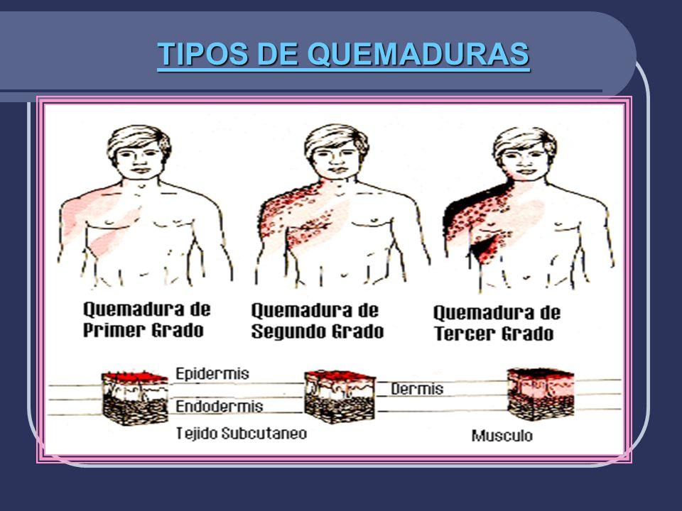 TIPOS DE QUEMADURAS