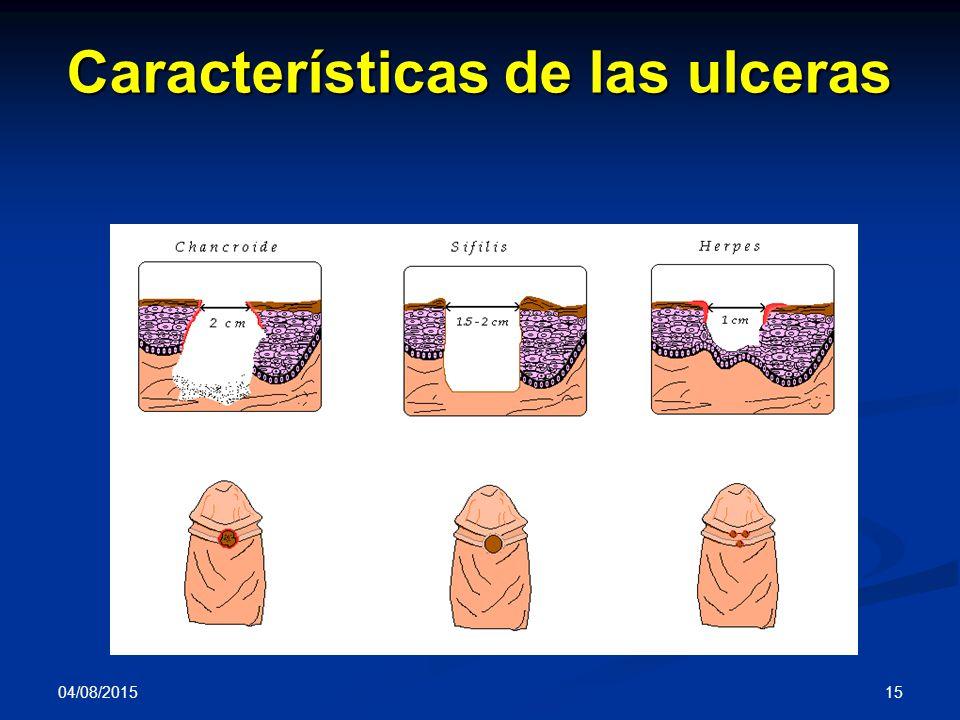 04/08/2015 15 Características de las ulceras