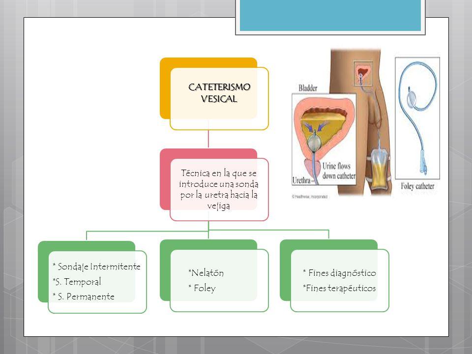 CATETERISMO VESICAL Técnica en la que se introduce una sonda por la uretra hacia la vejiga * Sondaje Intermitente *S. Temporal * S. Permanente *Nelató