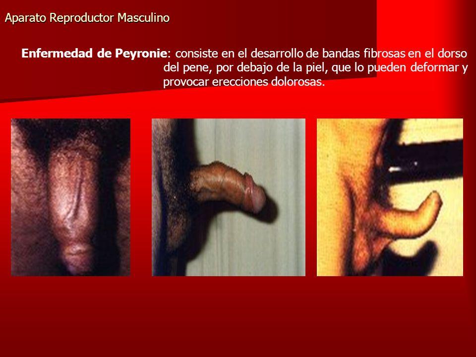 Aparato Reproductor Masculino Enfermedad de Peyronie: consiste en el desarrollo de bandas fibrosas en el dorso del pene, por debajo de la piel, que lo pueden deformar y provocar erecciones dolorosas.