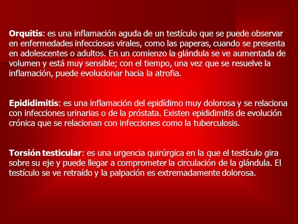 Orquitis: es una inflamación aguda de un testículo que se puede observar en enfermedades infecciosas virales, como las paperas, cuando se presenta en adolescentes o adultos.