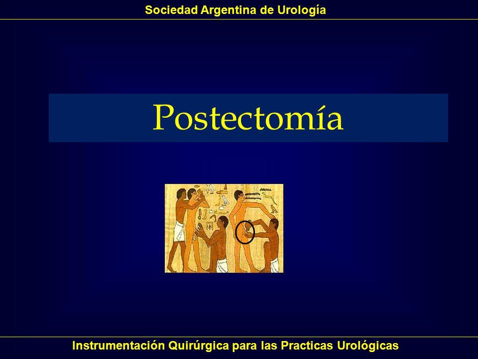 POSTECTOMIA Instrumentación Quirúrgica para las Practicas Urológicas FIMOSIS: estrechamiento del anillo prepucial, que evita la retracción del prepucio por detrás del glande