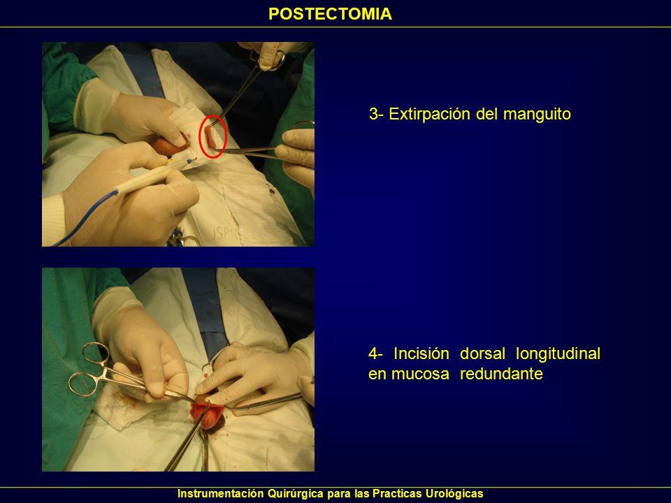 POSTECTOMIA Instrumentación Quirúrgica para las Practicas Urológicas 5- Resección circunferencial de mucosa