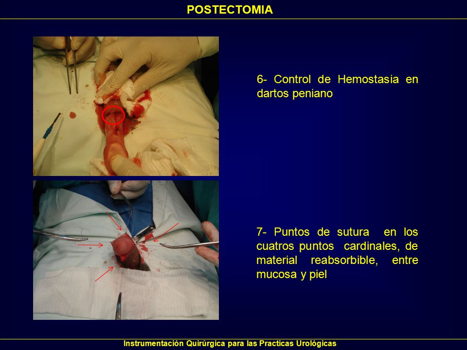 Instrumentación Quirúrgica para las Practicas Urológicas POSTECTOMIA 8- Se completa Sutura coronal 9- Con pene al cenit, oclusión de incisión y vendaje levemente compresivo