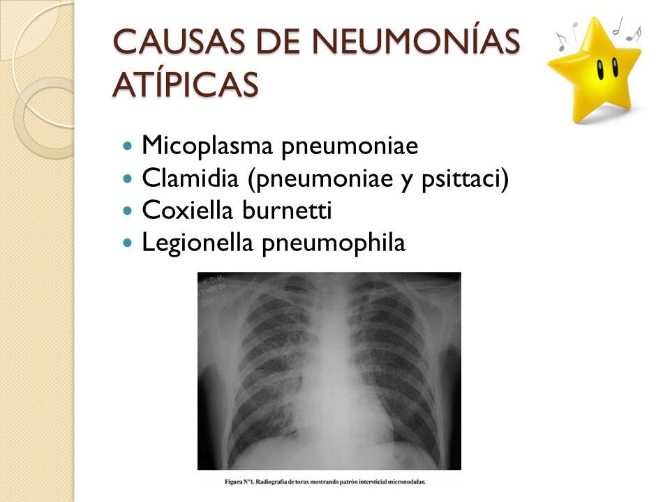 CAUSAS DE NEUMONÍAS ATÍPICAS Micoplasma pneumoniae Clamidia (pneumoniae y psittaci) Coxiella burnetti Legionella pneumophila