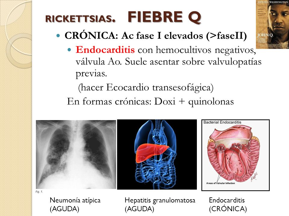RICKETTSIAS. FIEBRE Q CRÓNICA: Ac fase I elevados (>faseII) Endocarditis con hemocultivos negativos, válvula Ao. Suele asentar sobre valvulopatías pre