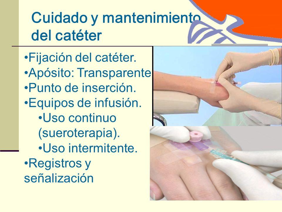 Cuidado y mantenimiento del catéter Fijación del catéter.