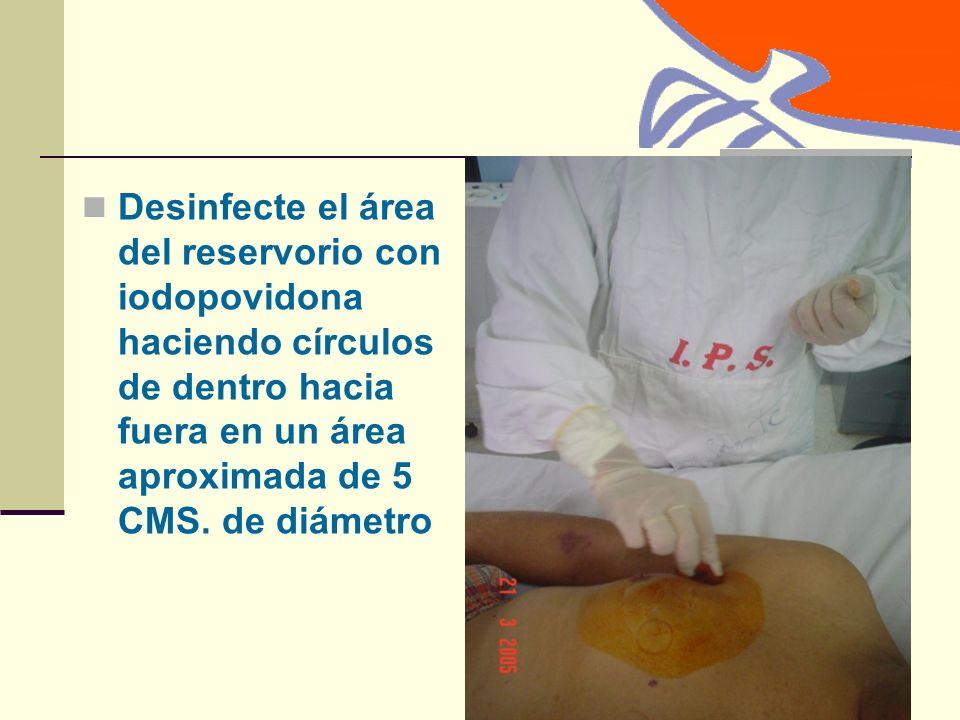 Desinfecte el área del reservorio con iodopovidona haciendo círculos de dentro hacia fuera en un área aproximada de 5 CMS.