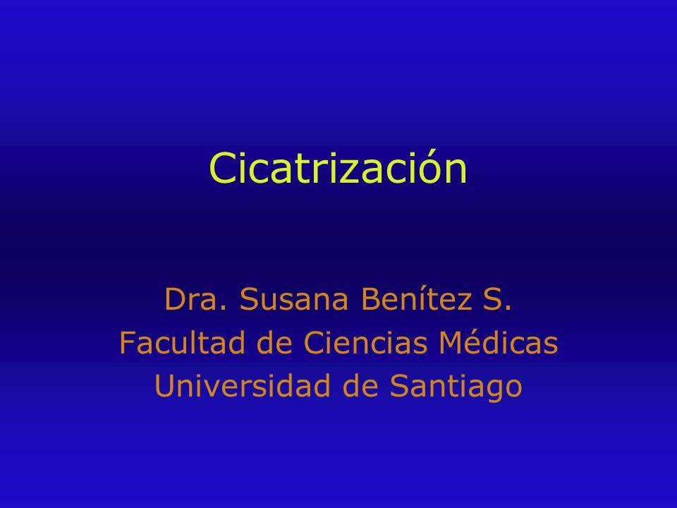 Cicatrización Dra. Susana Benítez S. Facultad de Ciencias Médicas Universidad de Santiago
