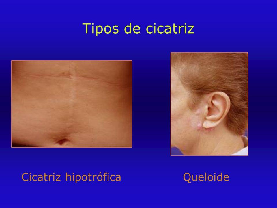 Tipos de cicatriz Cicatriz hipotróficaQueloide