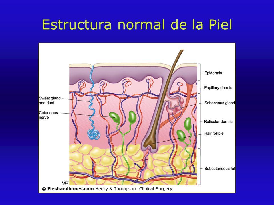 Estructura normal de la Piel