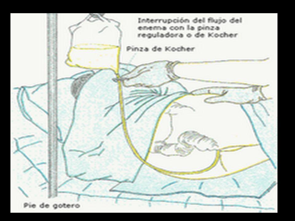  Colocar al paciente en decúbito lateral derecho una vez introducida la solución.