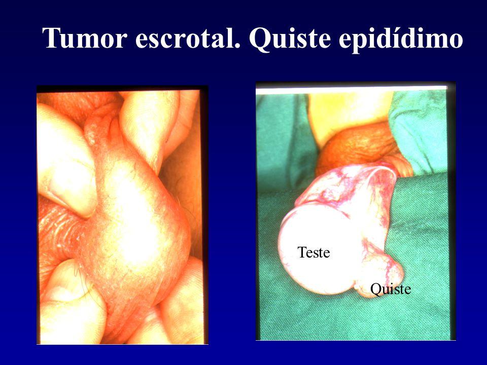 Tumor escrotal. Quiste epidídimo Teste Quiste