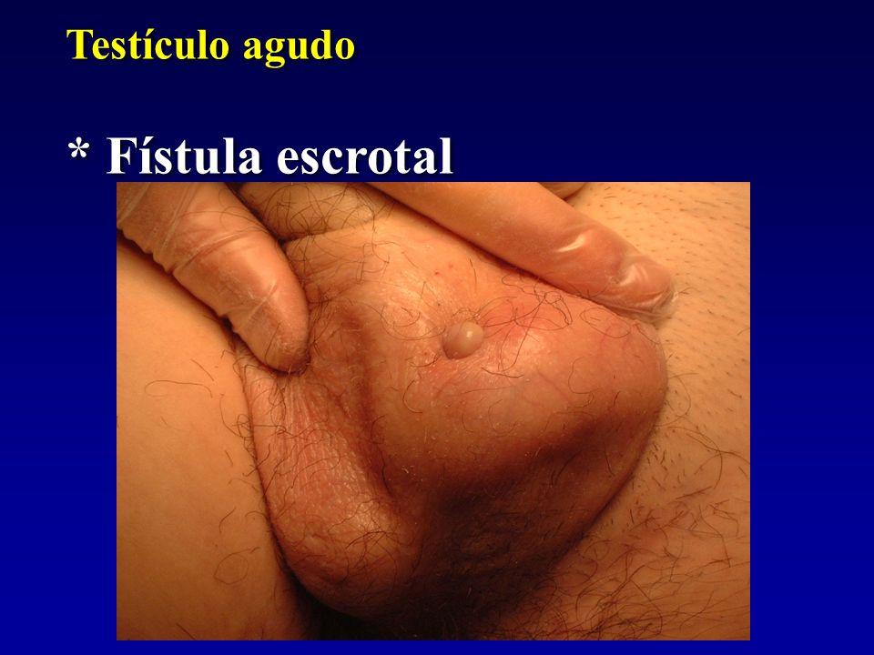 Testículo agudo * Fístula escrotal Testículo agudo * Fístula escrotal