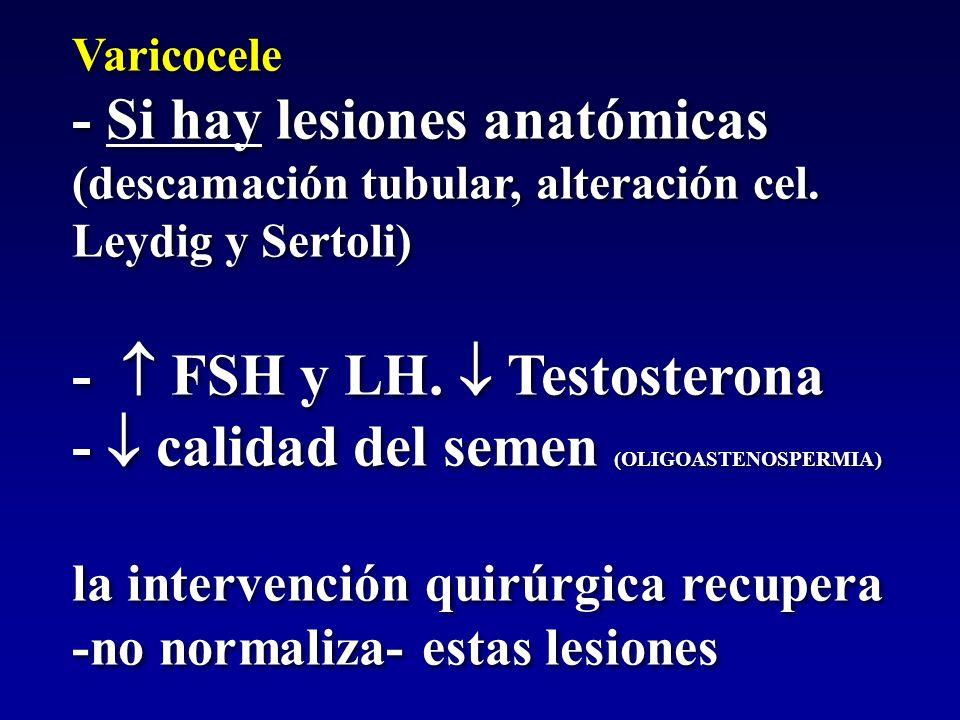 Varicocele - Si hay lesiones anatómicas (descamación tubular, alteración cel. Leydig y Sertoli) -  FSH y LH.  Testosterona -  calidad del semen (OL