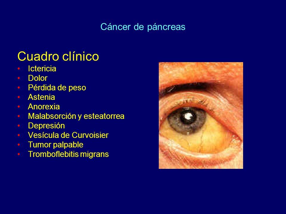 Cuadro clínico Ictericia Dolor Pérdida de peso Astenia Anorexia Malabsorción y esteatorrea Depresión Vesícula de Curvoisier Tumor palpable Tromboflebi