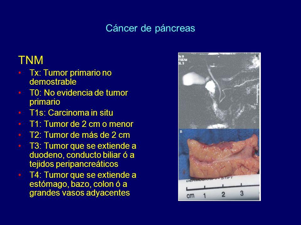 Cáncer de páncreas TNM Tx: Tumor primario no demostrable T0: No evidencia de tumor primario T1s: Carcinoma in situ T1: Tumor de 2 cm o menor T2: Tumor de más de 2 cm T3: Tumor que se extiende a duodeno, conducto biliar ó a tejidos peripancreáticos T4: Tumor que se extiende a estómago, bazo, colon ó a grandes vasos adyacentes