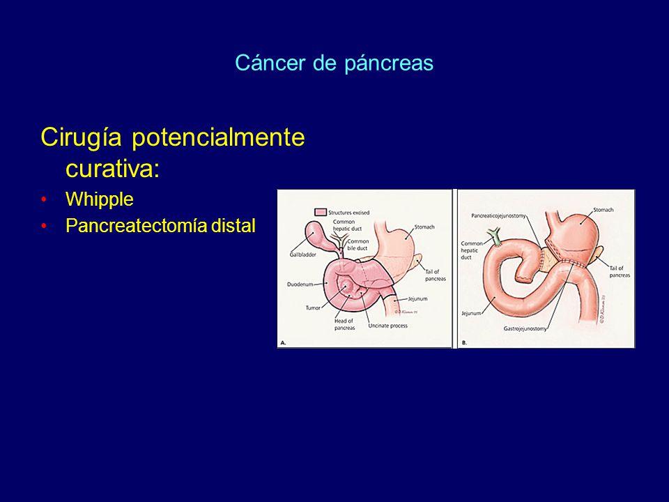 Cáncer de páncreas Cirugía potencialmente curativa: Whipple Pancreatectomía distal