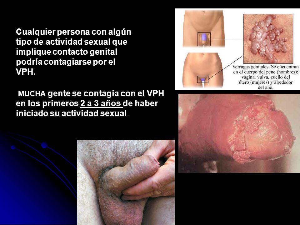 Cualquier persona con algún tipo de actividad sexual que implique contacto genital podría contagiarse por el VPH.