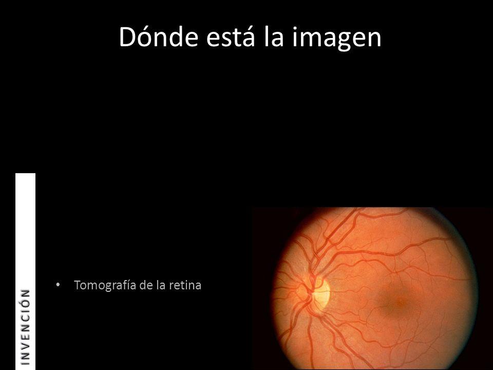 Tomografía de la retina Dónde está la imagen