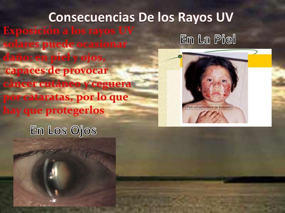 Exposición a los rayos UV solares puede ocasionar daño: en piel y ojos, capaces de provocar cáncer cutáneo y ceguera por cataratas, por lo que hay que