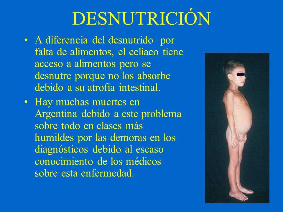 DESNUTRICIÓN A diferencia del desnutrido por falta de alimentos, el celíaco tiene acceso a alimentos pero se desnutre porque no los absorbe debido a s