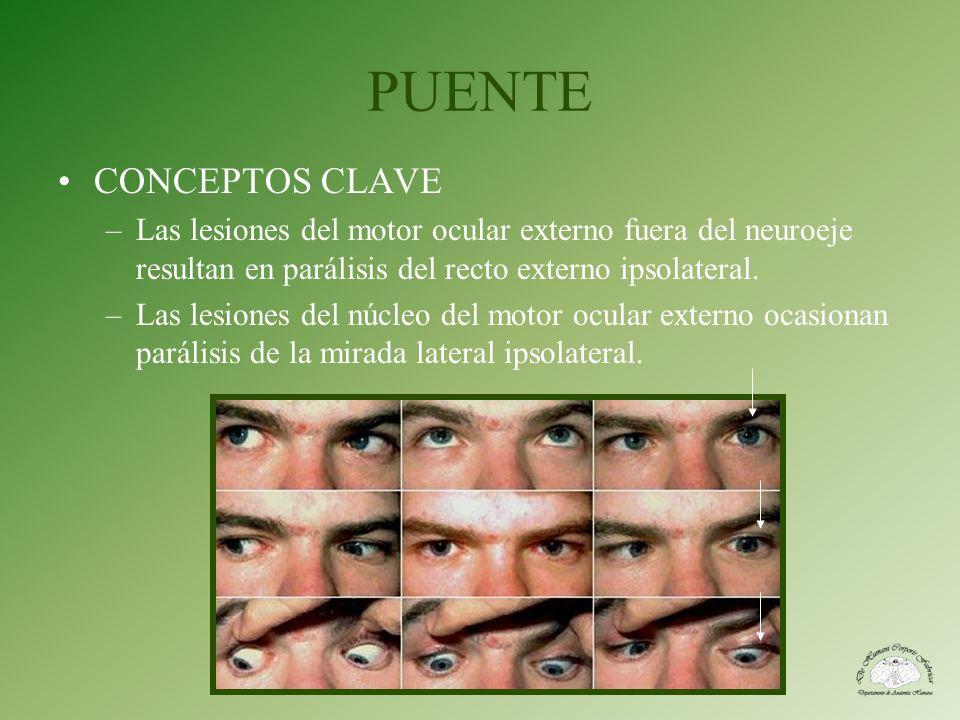PUENTE CONCEPTOS CLAVE –Las lesiones del motor ocular externo fuera del neuroeje resultan en parálisis del recto externo ipsolateral. –Las lesiones de