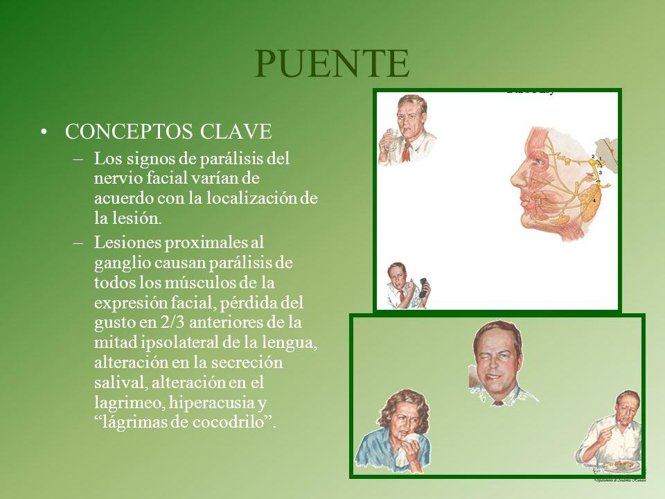 PUENTE CONCEPTOS CLAVE –Los signos de parálisis del nervio facial varían de acuerdo con la localización de la lesión. –Lesiones proximales al ganglio