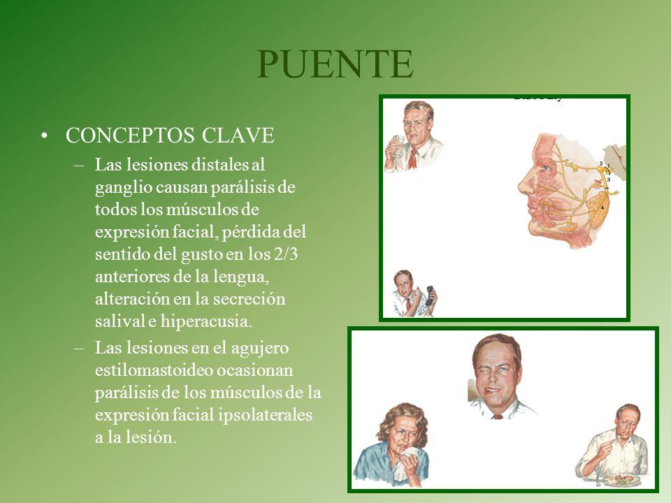 PUENTE CONCEPTOS CLAVE –Las lesiones distales al ganglio causan parálisis de todos los músculos de expresión facial, pérdida del sentido del gusto en