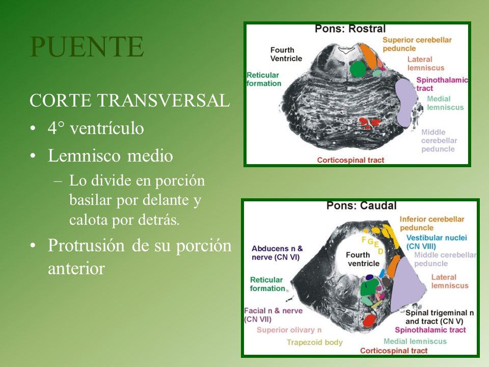 PUENTE CORTE TRANSVERSAL 4° ventrículo Lemnisco medio –Lo divide en porción basilar por delante y calota por detrás. Protrusión de su porción anterior
