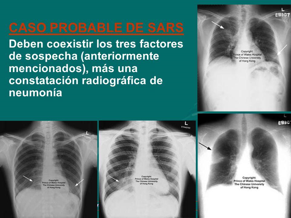 Dr. Ivan R. Sejas C. TBI-SABSA 25 CASO PROBABLE DE SARS Deben coexistir los tres factores de sospecha (anteriormente mencionados), más una constatació