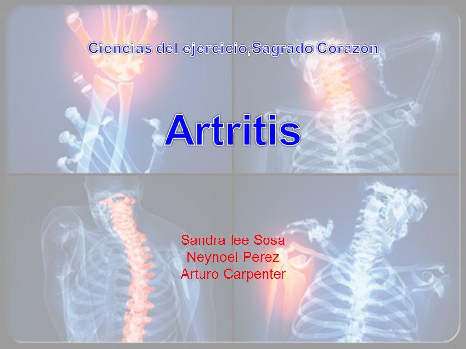Artritis Psoriasica Cuando el sistema inmunológico del cuerpo actúa a toda potencia y ataca la piel, se le conoce como psoriasis.