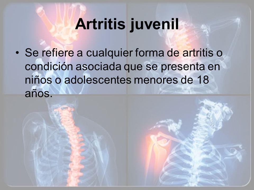 Artritis juvenil Se refiere a cualquier forma de artritis o condición asociada que se presenta en niños o adolescentes menores de 18 años.