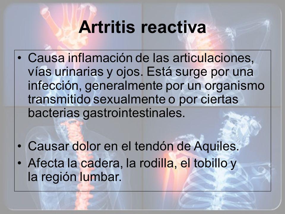 Artritis reactiva Causa inflamación de las articulaciones, vías urinarias y ojos. Está surge por una infección, generalmente por un organismo transmit