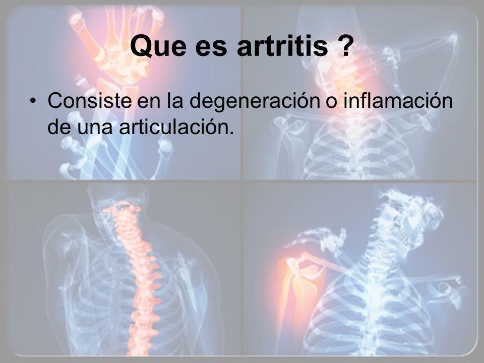 Que es artritis ? Consiste en la degeneración o inflamación de una articulación.