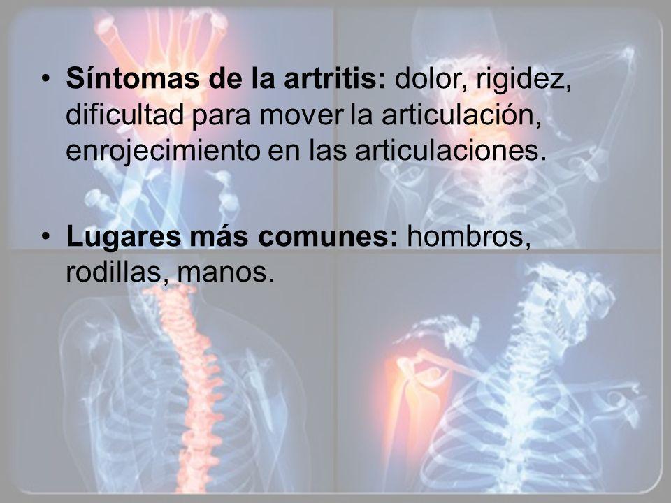 Síntomas de la artritis: dolor, rigidez, dificultad para mover la articulación, enrojecimiento en las articulaciones. Lugares más comunes: hombros, ro